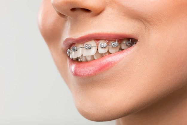 Todo sobre la ortodoncia